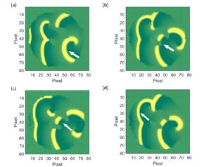 FHN Model for evolution of Heart Rhythms